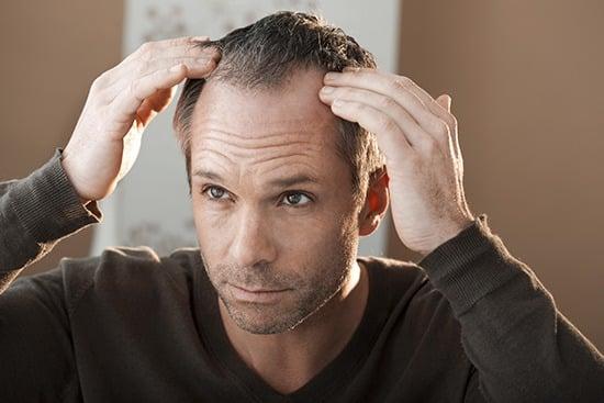 Los motivos de la caída del pelo