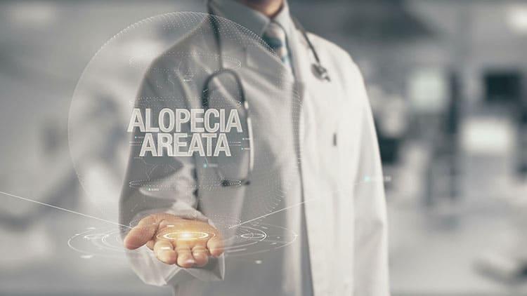 Alopecia Areata posible cura