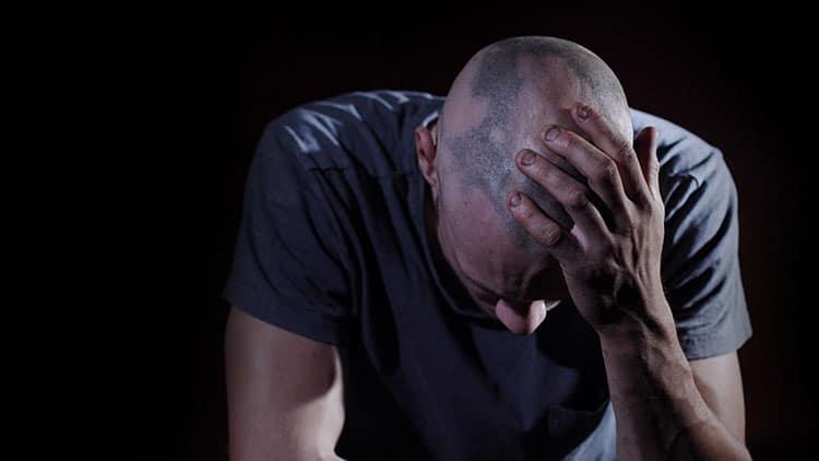 Alopecia Areata Grave